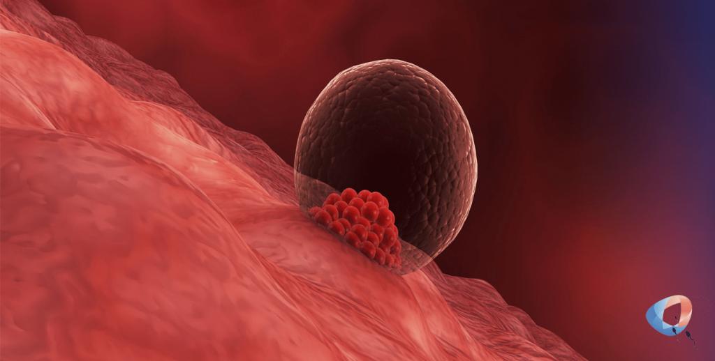 Endometrial Receptivity Analysis