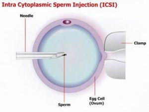 ICSI - Injeção Intracitoplasmática de espermatozóides