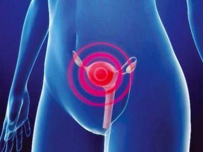 Efeitos da cirurgia no tratamento da endometriose