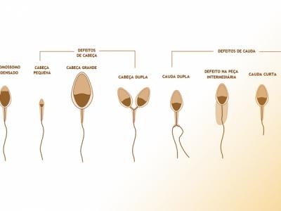 Capacitação Espermática – O Espermograma mais detalhado